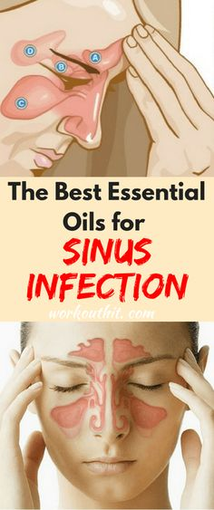 The Best Essential Oils for Sinus Infection - Workout Hit