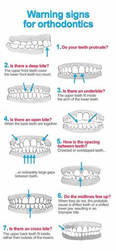 Warning signs for orthodontic treatment.