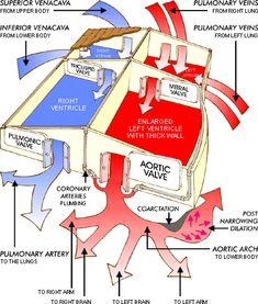 Cardiac diagramed like a house :)