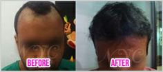 We guarantee our clients the highest level of hair care surgical expertise at affordable cost. http://www.thenewyouclinic.com/hair-transplant.html