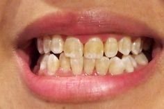 How to whiten your teeth in 3 minutes with this method- Come sbiancare i denti in 3 minuti con questo metodo You probably never would have suspected it - Beauty Care, Beauty Hacks, Hair Beauty, Science And Nature, Beautiful Boys, Home Remedies, Whitening, Natural Beauty, The Cure