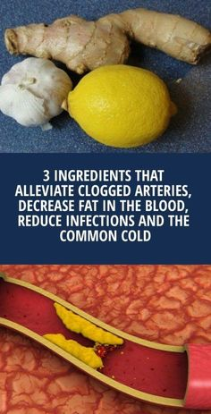 3 Ingredients That Alleviate Clogged Arteries, Decrease Fat In The Blood, Reduce Infections And The Common Cold - Health Food And Drink Fitness Workouts, Fitness Tips, Fitness Women, Natural Cures, Natural Health, Clogged Arteries, Clean Arteries, Cardiac Diet, Recipe Today