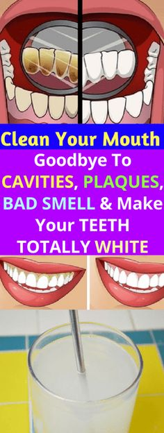 CLEAN YOUR MOUTH! GOODBYE TO CAVITIES, PLAQUES, BAD SMELL AND MAKE YOUR TEETH TOTALLY WHITE – Today Health People