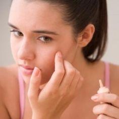 Six Golden Tips On Homemade Acne Treatment