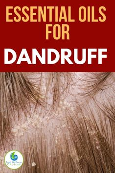 Looking for how to get rid of dandruff? Here are the best essential oils for dandruff and itchy scalp, plus homemade anti dandruff oil and shampoo diy recipes you can use to fight this irritating condition. via # diy shampoo for dandruff What Causes Dandruff, Home Remedies For Dandruff, Oils For Dandruff, Hair Dandruff, Getting Rid Of Dandruff, Anti Dandruff Shampoo, Diy Shampoo, Hair Remedies, Health Remedies