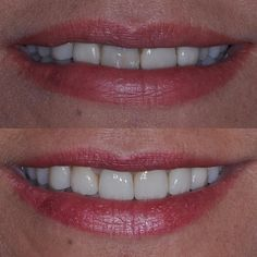 Very challenging case due to failing restorations & one missing permanent tooth. Patient requested minimal dentistry which is always my goal. This case was done using 3 different restorations which are very difficult to match aesthetically. 2 crowns 2 veneers & 1 implant later a beautiful harmonious smile has been created! #dentalimplants…