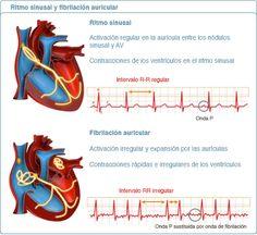 fibrilación auricular | La fibrilación auricular Medical Students, Nursing Students, Lower Belly Workout, Cardiac Nursing, Medical Anatomy, Med Student, Nursing Notes, Veterinary Medicine, Med School