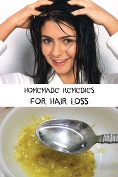 There are several simple and effective remedies that can be employed at home to ensure hair regrowth after prolong and sustained or sudden hair fall. Hair loss is a metabolic disorder where hair starts thinning and falling. Natural Hair Loss Treatment, Hair Growth Treatment, Natural Hair Care, Natural Hair Styles, Home Remedies For Hair, Hair Loss Remedies, Salud Natural, Tips Belleza, Up Dos