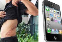 Vlastná hlúposť ho pripútala na posteľ: Aby si kúpil iPhone, predal obličku. Dnes kruto trpí! Iphone, Celebrity, Celebrities, Celebs