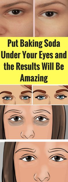 Put Baking Soda Under Your Eyes and the Results Will Be Amazing – seeking habit