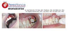 Un implante dental es realmente un reemplazo para la raíz o raíces de un diente. Como raíces de los dientes, implantes dentales se fijan en el hueso de la mandíbula y no son visibles una vez colocado quirúrgicamente. Ellos se utilizan para asegurar las coronas (las partes de los dientes vistos en la boca) , la construcción de puente o dentadura postiza por una variedad de medios .