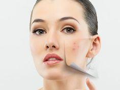 Jeżeli chcesz wiedzieć w jaki sposób (metodami domowymi lub kosmetykami) pozbyć się trądziku, to zapraszam na mojego bloga ;)
