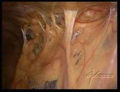 Abdominal Adhesions Causes Symptoms Prevention Diagnosed And Treatment Health Abdominal