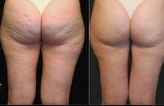 Διώξε τη κυτταριτιδα με ένα σούπερ λαδάκι με λεμόνι πιπέρι και μερικα ακομη φυσικα υλικα που θα βρεις στη κουζινα σου Facial Treatment, Body Treatments, Skin Tightening Cream, Skin Resurfacing, Weight Loss Blogs, Bright Skin, Anti Aging Serum, Anti Cellulite, Weight Gain
