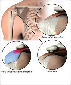 shoulder impingement   Physical Therapy Shoulder Impingement Exercises http://inspiredmotion ...