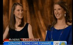 They Were Born as Conjoined Twins, Now They are Co-Valedictorians http://www.lifenews.com/2014/06/10/they-were-born-as-conjoined-twins-now-they-are-co-valedictorians/