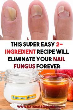 This super easy 2 ingredient recipe will eliminate your nail fungus forever Health Remedies, Home Remedies, Natural Remedies, Healthy Beauty, Healthy Tips, 2 Ingredient Recipes, Nail Fungus, Fungus Toenails, 2 Ingredients
