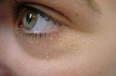 éliminer les points blancs du visage naturellement