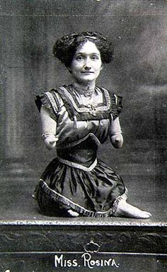 """Miss Rosina (Rose Foster – aka Mermaidia, Miss Tiny) toured throughout Europe and despite having no arms, could crochet using her feet. She concluded her shows with the following: """"In conclusion, ladies and gentlemen, I may say that as this is my means of getting a living, you will kindly recommend your friends to see my show."""""""