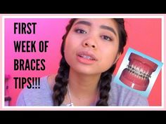Did you know the first orthodontic brackets were invented by 4 braces update what to expect the first week dawn solutioingenieria Image collections