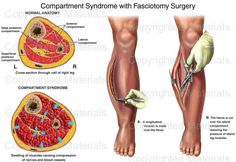 Compartment Syndrome with Fasciotomy Surgery : Medical Exhibit