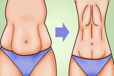 A major issue for most women is saggy stomach skin. Whether it's caused by drastic weight loss or by pregnancy, saggy skin on your stomach Perder 10 Kg, Lose Weight, Weight Loss, Lose Fat, Unwanted Hair, Unwanted Facial, Healthy Beauty, Healthy Food, Healthy Nails