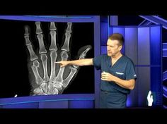 Dupuytrens Contracture Surgery - YouTube