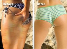 Save money treat Stretch Marks with Home Remedies #PreventingStretchMarks #WitchHazelStretchMarks Beauty Care, Diy Beauty, Beauty Hacks, Pure Beauty, Beauty Ideas, Natural Beauty, Stretch Mark Remedies, Cellulite Remedies, Health And Beauty Tips