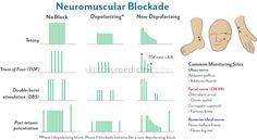 Monitoring Neuromuscular Blockade | Sketchy Medicine