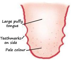 """""""Qi Deficiency Tongue: The tongue is pale or normal coloured, can be swollen with teethmarks on the side."""" Qi Deficiency, Health Tips, Health And Wellness, Tongue Health, Adrenal Support, Homeopathy, Alternative Medicine, Herbal Medicine"""
