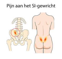 SI-gewricht-klachten - Another! Yoga Fitness, Health Fitness, Studio Pilates, Hernia, Si Joint, Spine Health, Body Hacks, Health Matters, Acupressure