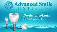 Get dental implants with Port St. Lucie dentist Dr. Robert Lens at Advanced Smile Institute. Over 25 years of experience, awarded Fellowship status at the American Dental Implant Association, and offers up-front costs. #dentalimplants #portstlucie #dentist #dentalimplantsportstlucie
