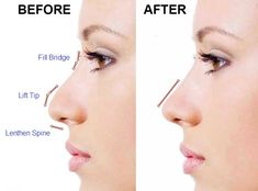 Rhinoplasty - Things to Know About Your Nose Job - Sadrian Plastic Surgery Fractional Laser Treatment, Collagen Fillers, Nose Reshaping, Fitness Tattoos, Medical Spa, Dermal Fillers, Rhinoplasty, Skin Tightening, Plastic Surgery
