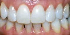 dentist teeth whitening