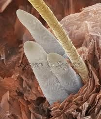 Microscopic view of demodex mites in hair follicle