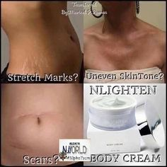 Nlighten Beauty Care & Business Opportunity by Rosendo Roy Barretto Dangani Lighten Scars, Centella, Facial Cream, Uneven Skin Tone, Beauty Review, Stretch Marks, Business Opportunities, Beauty Care, Natural Skin