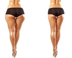 Dealing With Cellulite? Work On It With These Tips Lose Fat, Lose Weight, Yoga Fitness, Health Fitness, Visceral Fat, Weight Loss Drinks, Fat Fast, Plastic Surgery, Legs