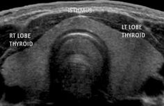 Thyroid Gland Ultrasound Image (normal) with labels.
