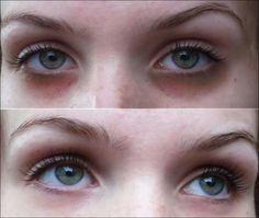 Nem imagina o quanto é fácil acabar com as olheiras - http://comosefaz.eu/nem-imagina-o-quanto-e-facil-acabar-com-as-olheiras/
