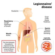 Legionella bacteria trigger pneumonia, which is inflammation of the lungs. This causes a high fever, chills, coughing and muscle aches. Las Vegas Strip Hotels, High Fever, Neck And Back Pain, Respiratory System, Health Department, Durham, Leeds, Newcastle, Yorkie