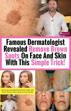 Famous Revealed Dermatologist: Remove Brown Spots on Face And Skin With This Simple Trick! Sun Spots On Skin, Black Spots On Face, Brown Spots On Skin, Brown Skin, Dark Brown, Dark Spots, How To Get Rid, How To Remove, Spots On Forehead