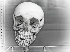 Jaws. In 1888, seven skeletons were found in a burial mound near Clearwater Minn. They were anatomically correct, except that the skulls featured double rows of teeth in the upper and lower jaws and had been buried in a sitting position, facing the lake. The foreheads were unusually low and sloping, with prominent brows.
