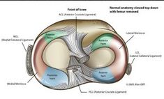 knee anatomy is quite complex as it forms an important structure of lower limb. Let us discuss the detailed anatomy of knee joint. Medial Meniscus Tear, Knee Meniscus, Knee Joint Anatomy, Anatomy Of The Knee, Common Knee Injuries, Knee Injury, Tibial Plateau Fracture, Radiology Student, Anterior Cruciate Ligament