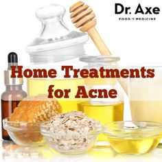 Natural home acne treatments