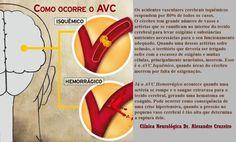 Combate ao AVC :: Clínica Dr. Alexandre Cruzeiro