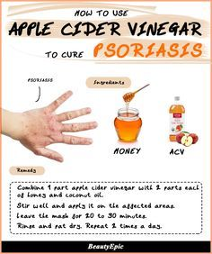 Remedies For Health Apple Cider Vinegar for Psoriasis: Effective Remedies to Try at Home - Psoriasis is undoubtedly chronic skin disease which is caused due to body's immune system. here are remedies on using of apple cider vinegar for psoriasis Home Remedies For Psoriasis, Eczema Psoriasis, How To Cure Psoriasis, Plaque Psoriasis, Guttate Psoriasis Treatment, Acne Treatments, Homemade Cosmetics, Home Remedies, Health Tips