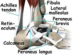 I think I have an issue with one of my peroneous tendons - could do without it this close to a marathon