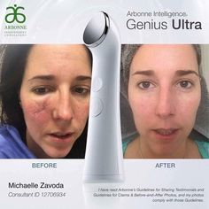 """Save 40% until December 15th email mindy@mindyshear.com or shop online as a preferred client mindyshear.arbonne.com  WOW.....WOW.....WOW......this is what one consultant wrote about her before picture (skin cancer surgery) and what happened with using the Genius Ultra with our amazing products! She used RE9 toner, serum (genius pads once pain went way). It took 4 months, from surgery to NO scar!!   """"Best skin care tool on the Market!!! Everyone has been asking me to share my"""