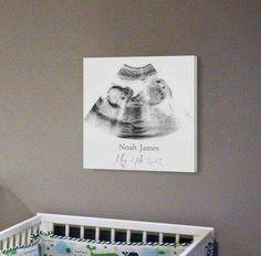 Sonogram Print, Kinderzimmer Wanddekoration, personalisierte Ultraschall Leinwand Rahmen, Ultraschall Wand Dekor Best Picture For Baby Room organization For Your Taste You are looking for something, a Baby Bedroom, Baby Room Decor, Nursery Room, Nursery Wall Art, Girl Nursery, Nursery Ideas, Baby Boy Nursey, Nursery Canvas, Project Nursery