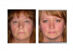 Affordable Anti Aging Products - Visit http://www.pricecanvas.com/health/anti-aging-products/ For Anti Aging Products.